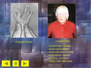 СИНДАКТИЛИЯ АЛЬБИНИЗМ Отсутствие пигмен-тации формирует типичную внешность а