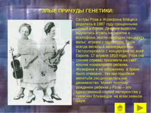 ЗЛЫЕ ПРИЧУДЫ ГЕНЕТИКИ: Сестры Роза и Жозефина Блацеск родились в 1887 году ср