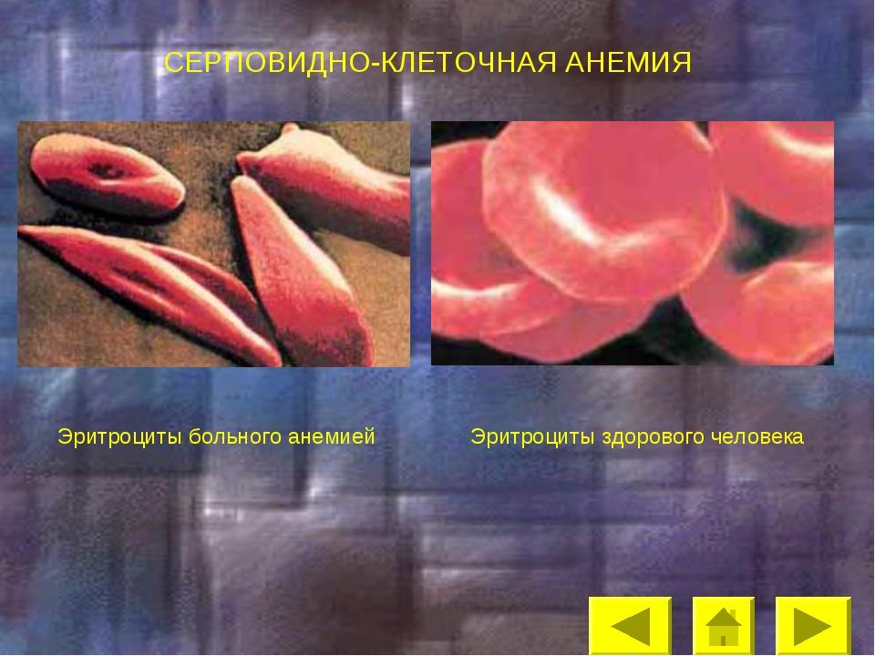 СЕРПОВИДНО-КЛЕТОЧНАЯ АНЕМИЯ Эритроциты здорового человека Эритроциты больного...