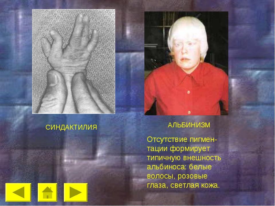 СИНДАКТИЛИЯ АЛЬБИНИЗМ Отсутствие пигмен-тации формирует типичную внешность а...