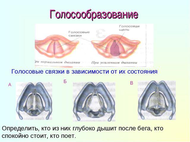 Голосообразование Голосовые связки в зависимости от их состояния А Б В Опреде...
