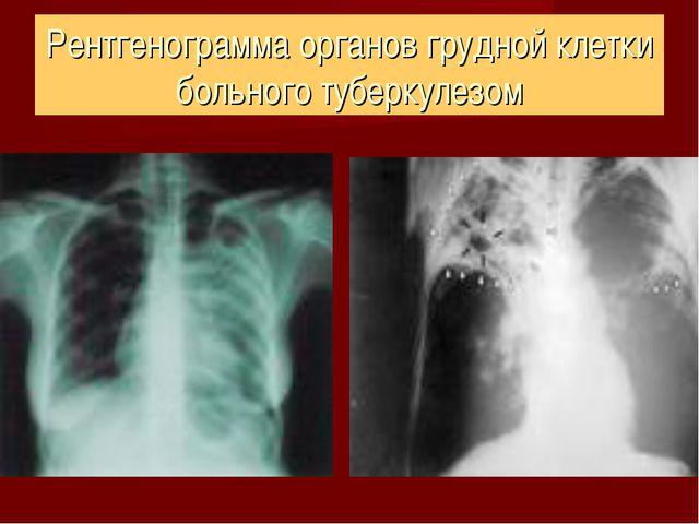 Рентгенограмма органов грудной клетки больного туберкулезом