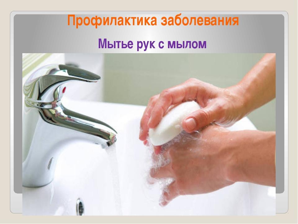 Профилактика заболевания Мытье рук с мылом