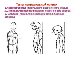 Типы неправильной осанки 1.Кифотическая (искривление позвоночника назад) 2.