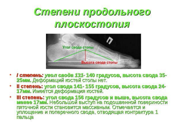 Степени продольного плоскостопия I степень: угол свода 131- 140 градусов, выс...
