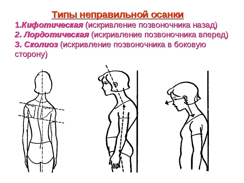 Типы неправильной осанки 1.Кифотическая (искривление позвоночника назад) 2....