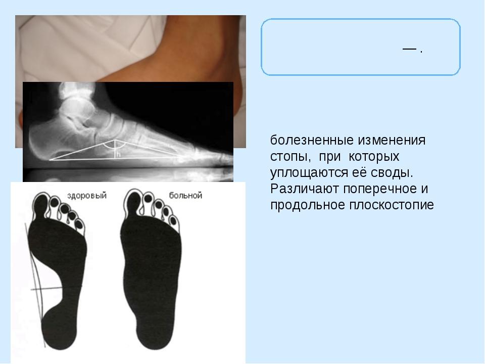 Плоскосто́пие— . болезненные изменения стопы, при которых уплощаются её свод...