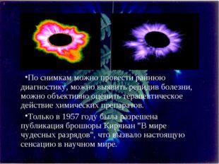 По снимкам можно провести раннюю диагностику, можно выявить рецидив болезни,
