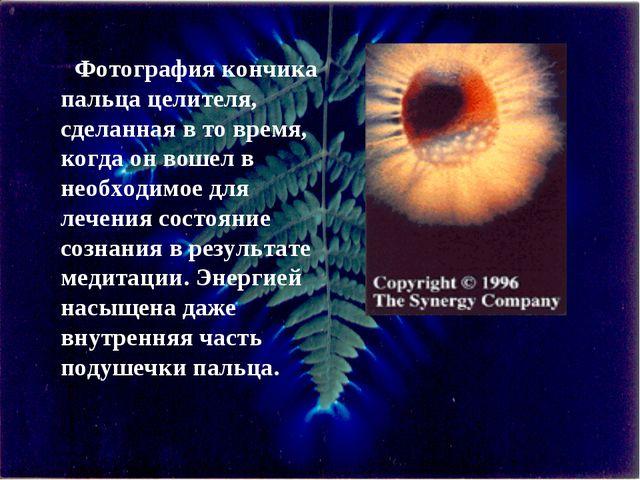 Фотография кончика пальца целителя, сделанная в то время, когда он вошел в не...