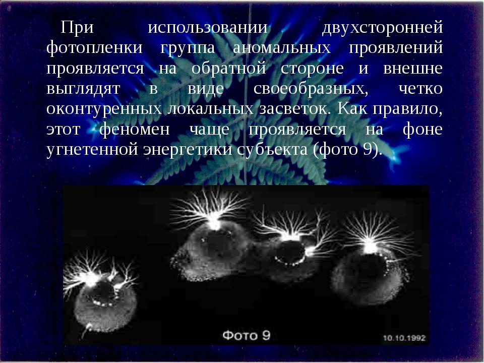 При использовании двухсторонней фотопленки группа аномальных проявлений прояв...