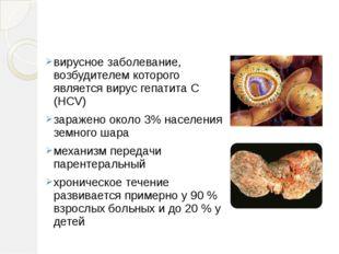 Гепати́т C вирусное заболевание, возбудителем которого является вирус гепатит