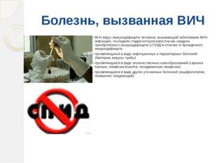 Болезнь, вызванная ВИЧ ВИЧ вирус иммунодефицита человека, вызывающий заболева