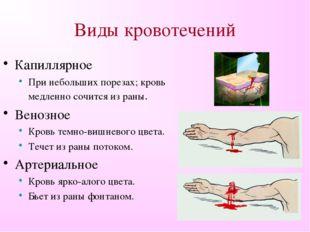 Виды кровотечений Капиллярное При небольших порезах; кровь медленно сочится и