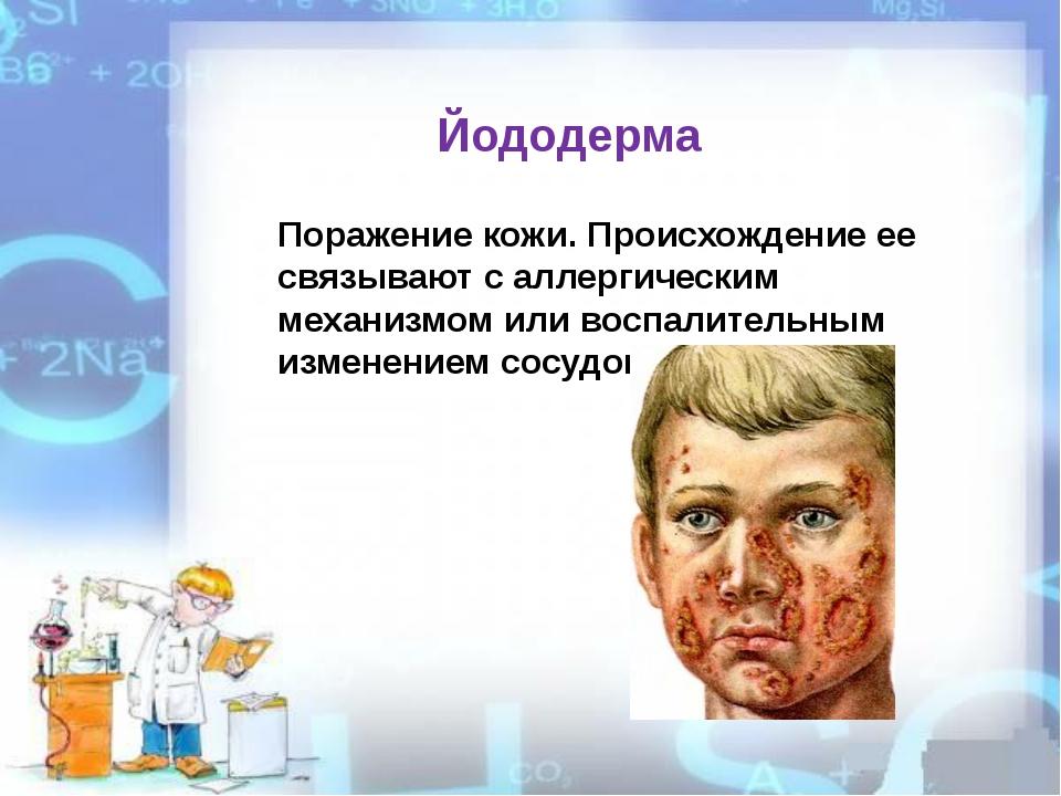 Поражение кожи. Происхождение ее связывают с аллергическим механизмом или вос...