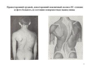 Правосторонний грудной, левосторонний поясничный сколиоз III степени: а) фото