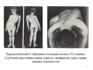 Паралитический С-образный тотальный сколиоз IV степени. Глубокий парез мышц с