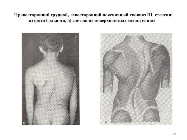 Правосторонний грудной, левосторонний поясничный сколиоз III степени: а) фото...