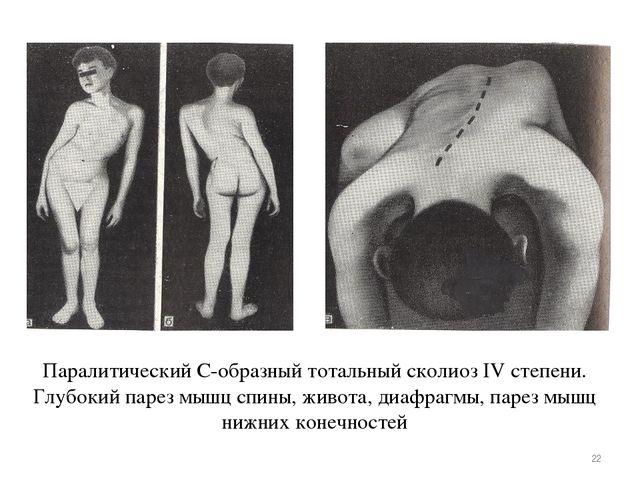 Паралитический С-образный тотальный сколиоз IV степени. Глубокий парез мышц с...