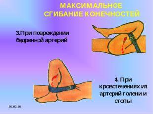 * МАКСИМАЛЬНОЕ СГИБАНИЕ КОНЕЧНОСТЕЙ 3.При повреждении бедренной артерий 4. Пр