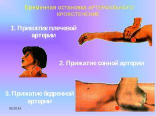 * Временная остановка АРТЕРИАЛЬНОГО КРОВОТЕЧЕНИЕ 2. Прижатие сонной артерии 1