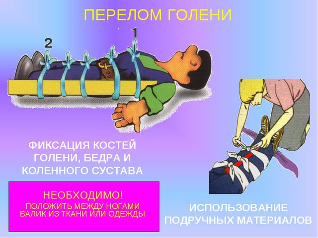 ПЕРЕЛОМ ГОЛЕНИ ИСПОЛЬЗОВАНИЕ ПОДРУЧНЫХ МАТЕРИАЛОВ ФИКСАЦИЯ КОСТЕЙ ГОЛЕНИ, БЕД...