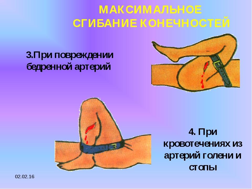 * МАКСИМАЛЬНОЕ СГИБАНИЕ КОНЕЧНОСТЕЙ 3.При повреждении бедренной артерий 4. Пр...