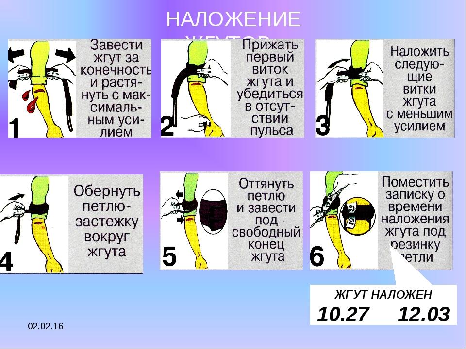 * ШАГ 1 ШАГ 2 ШАГ 3 ШАГ 4 ШАГ 5 ШАГ 6 НАЛОЖЕНИЕ ЖГУТОВ ЖГУТ НАЛОЖЕН 10.27 12.03
