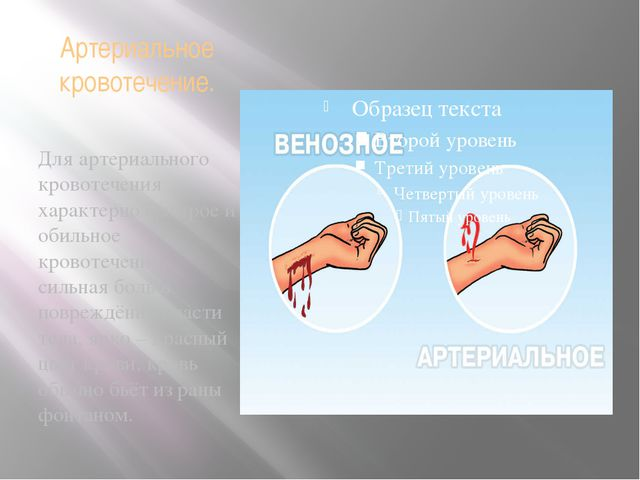 Артериальное кровотечение. Для артериального кровотечения характерно быстрое...