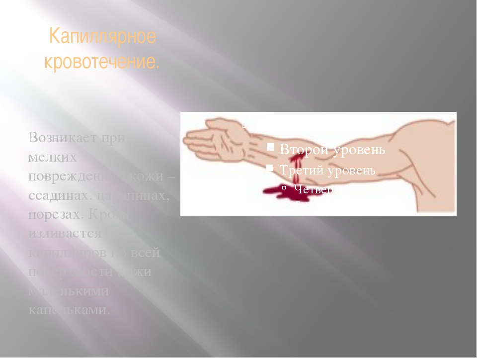 Капиллярное кровотечение. Возникает при мелких повреждениях кожи – ссадинах....