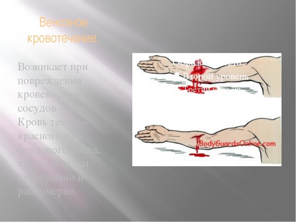 Венозное кровотечение. Возникает при повреждении кровеносных сосудов – вен. К...