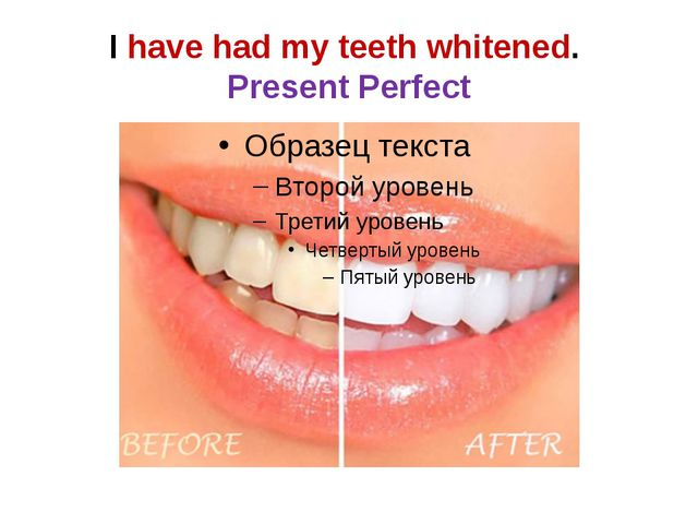 I have had my teeth whitened. Present Perfect