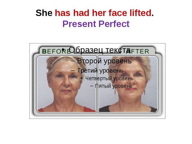She has had her face lifted. Present Perfect