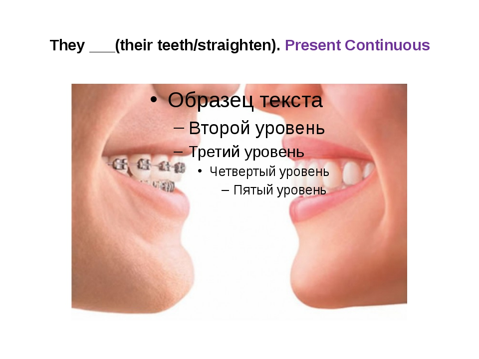 They ___(their teeth/straighten). Present Continuous