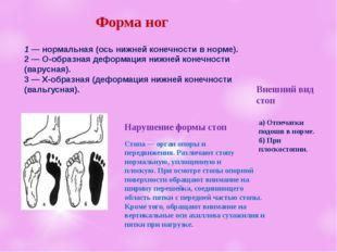 Форма ног 1 — нормальная (ось нижней конечностив норме). 2 —О-образнаядеф