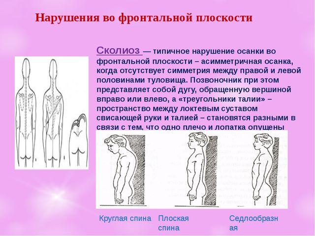 Нарушенияво фронтальнойплоскости Сколиоз— типичное нарушение осанкиво фр...
