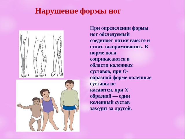 Нарушение формы ног При определении формы ног обследуемый соединяет пятки вм...