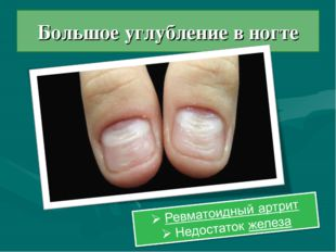 Большое углубление в ногте
