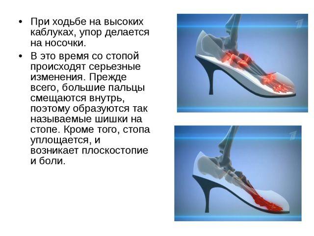 При ходьбе на высоких каблуках, упор делается на носочки. В это время со стоп...