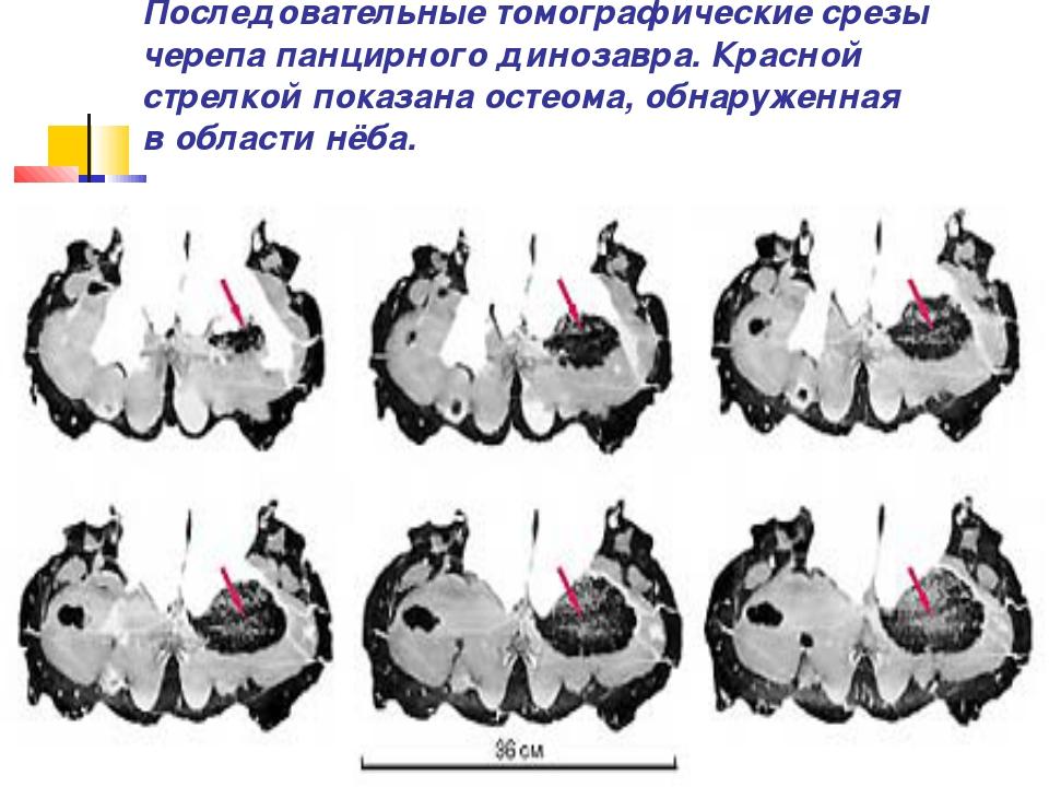 Последовательные томографические срезы черепа панцирного динозавра. Красной с...