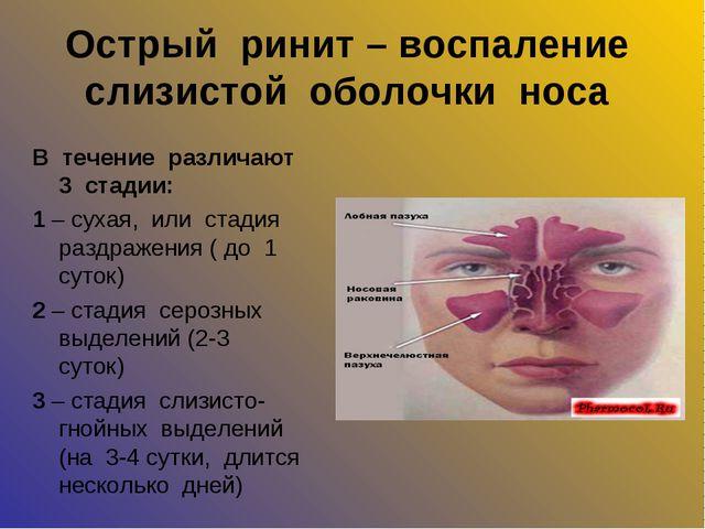 Острый ринит – воспаление слизистой оболочки носа В течение различают 3 стади...
