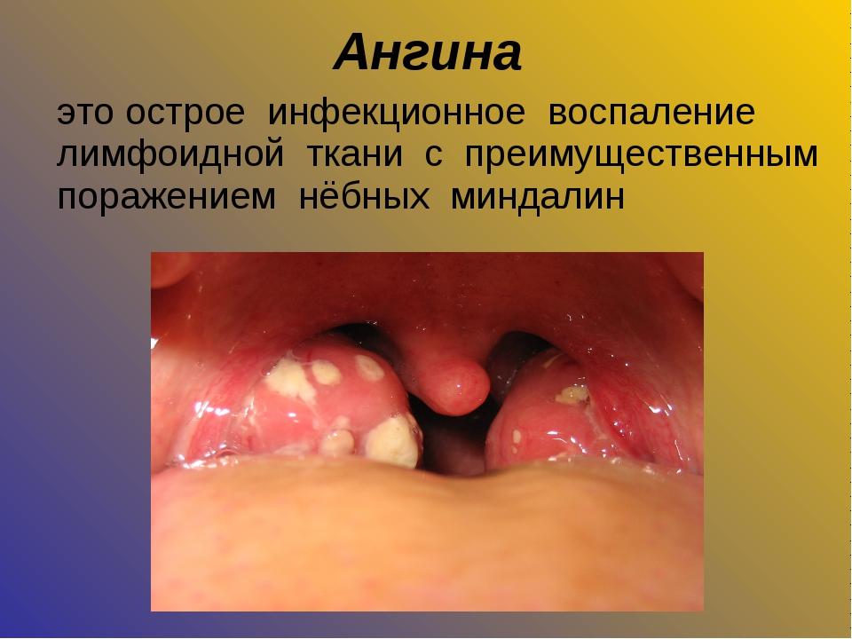 Ангина это острое инфекционное воспаление лимфоидной ткани с преимущественным...