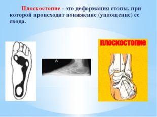 Плоскостопие - это деформация стопы, при которой происходит понижение (уплощ