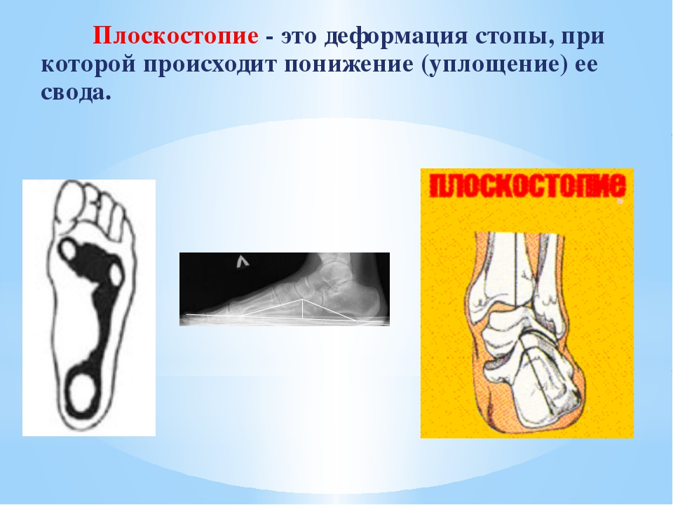 Плоскостопие - это деформация стопы, при которой происходит понижение (уплощ...