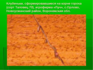 Клубеньки, сформировавшиеся на корне гороха (сорт Таловец 70), агрофирма «Луч