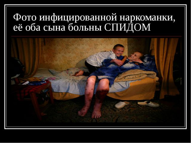 Фото инфицированной наркоманки, её оба сына больны СПИДОМ