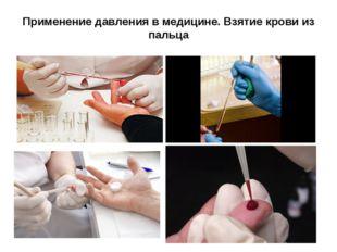 Применение давления в медицине. Взятие крови из пальца