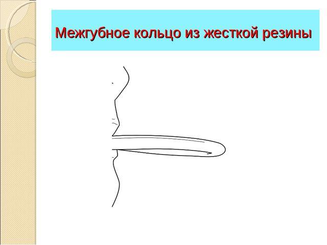 Межгубное кольцо из жесткой резины