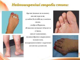 бурсит (шишки на пальцях), втомні переломи, суглобові болі підйому склепіння