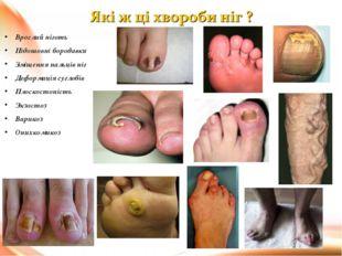 Врослий ніготь Підошовні бородавки Зміщення пальців ніг Деформація суглобів П