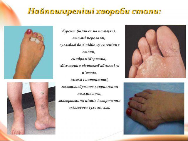 бурсит (шишки на пальцях), втомні переломи, суглобові болі підйому склепіння...